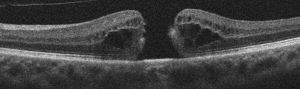 Buraco macular de espessura total – Imagem de OCT Fonte: http://discoveryeye.org/