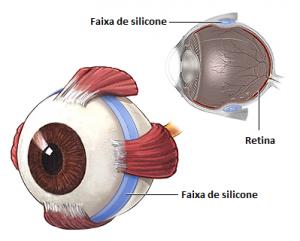 Figura 4 (imagem meramente ilustrativa) Fonte: www.nlm.nih.gov/medlineplus